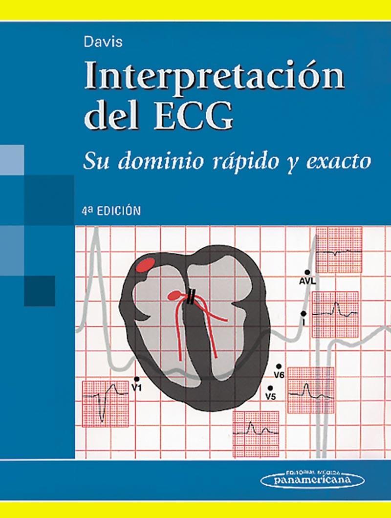 Interpretación del ECG 4° Ed