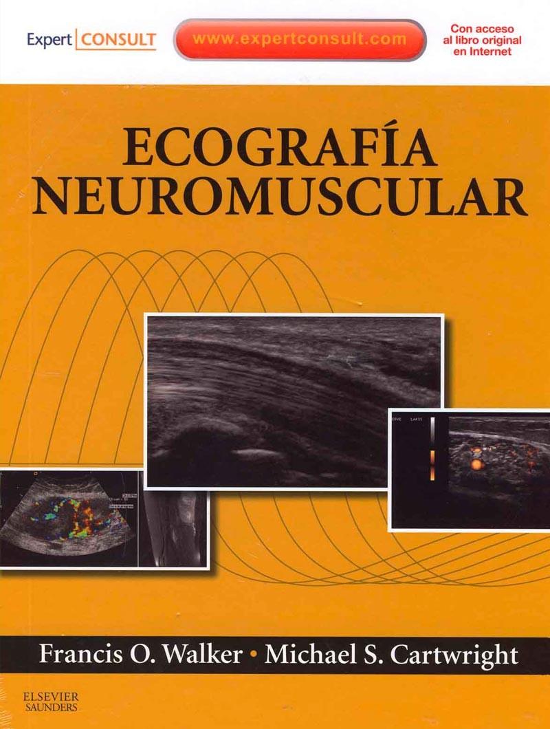 Ecografía Neuromuscular