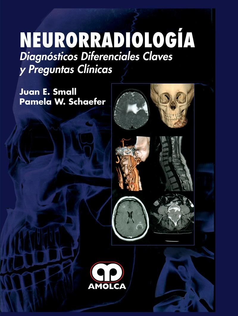 Neurorradiología....