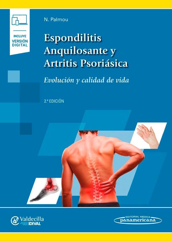 Espondilitis Anquilosante y...