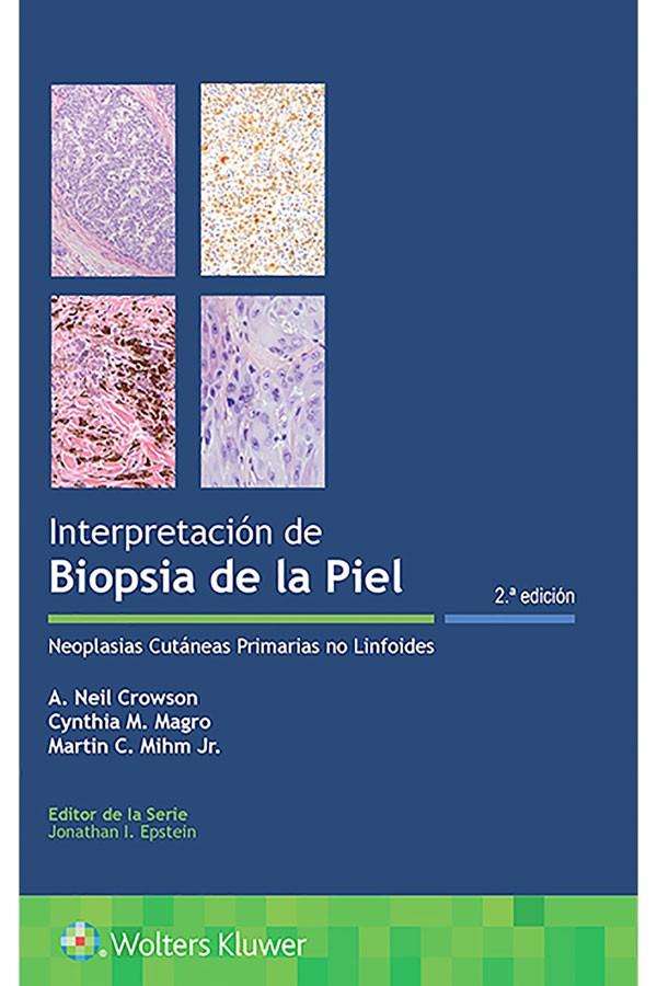 Interpretación de biopsias...