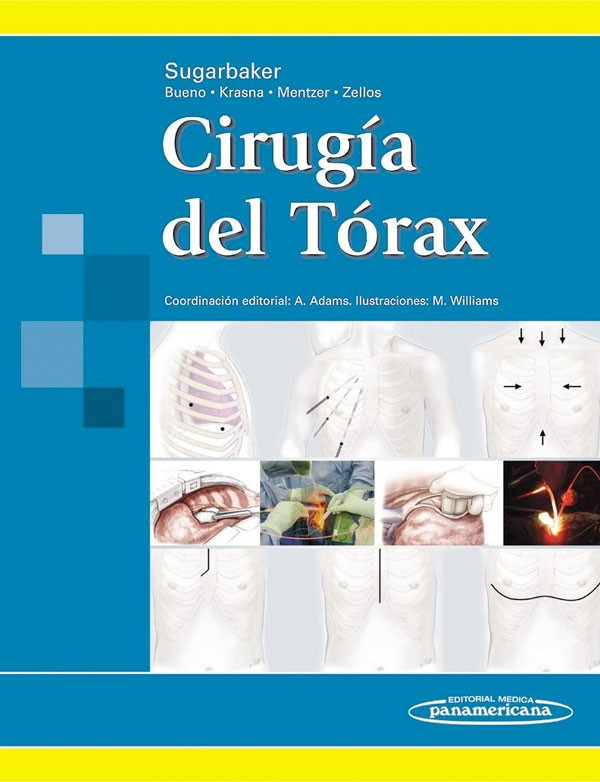 Cirugía del tórax