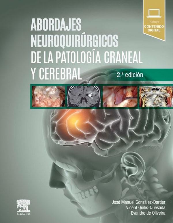 Abordajes neuroquirurgicos...