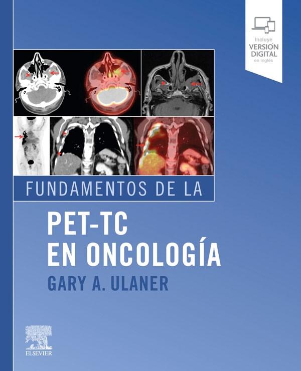 Fundamentos del PET-TC en...