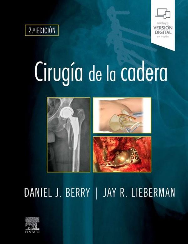 Cirugía de la cadera 2ª Ed.