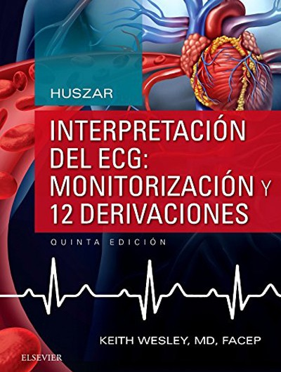 Interpretación del ECG:...
