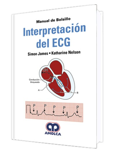 Interpretación del ECG....